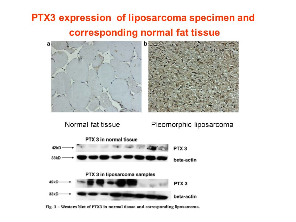 PTX3 expression of liposarcoma specimen and