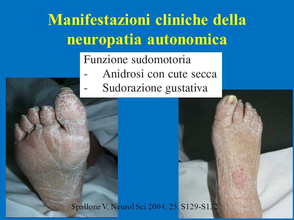 Manifestazioni cliniche della neuropatia autonomica