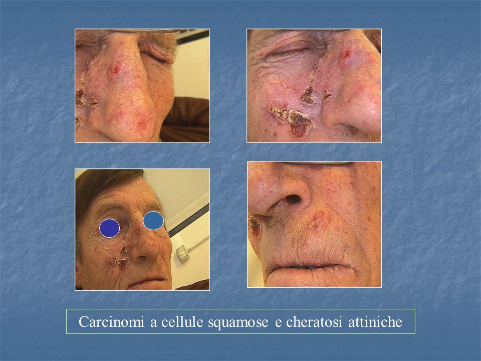 Carcinomi a cellule squamose e cheratosi attiniche