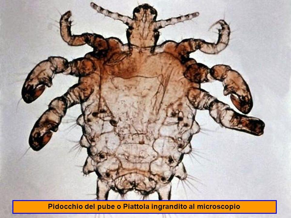 Pidocchio del pube o Piattola ingrandito al microscopio