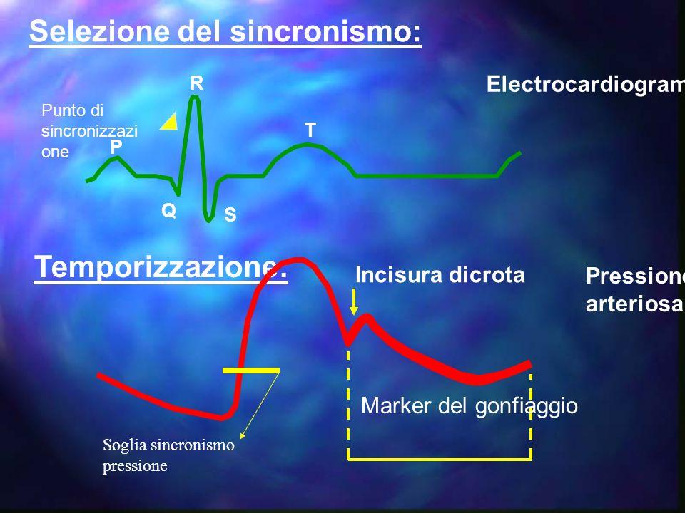 Selezione del sincronismo: