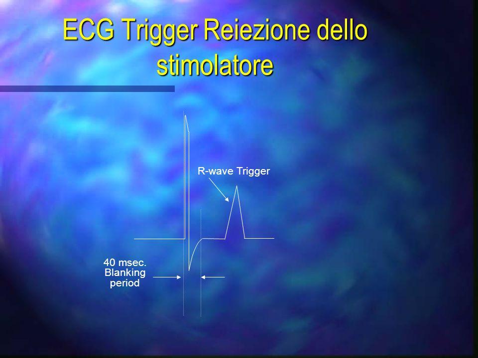 ECG Trigger Reiezione dello stimolatore