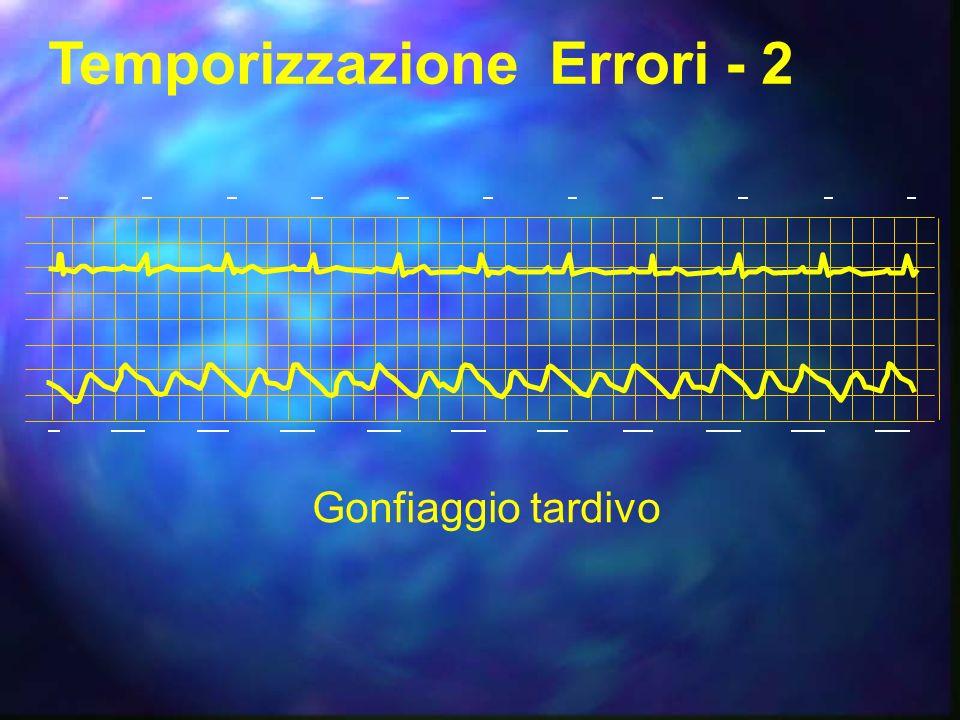 Temporizzazione Errori - 2