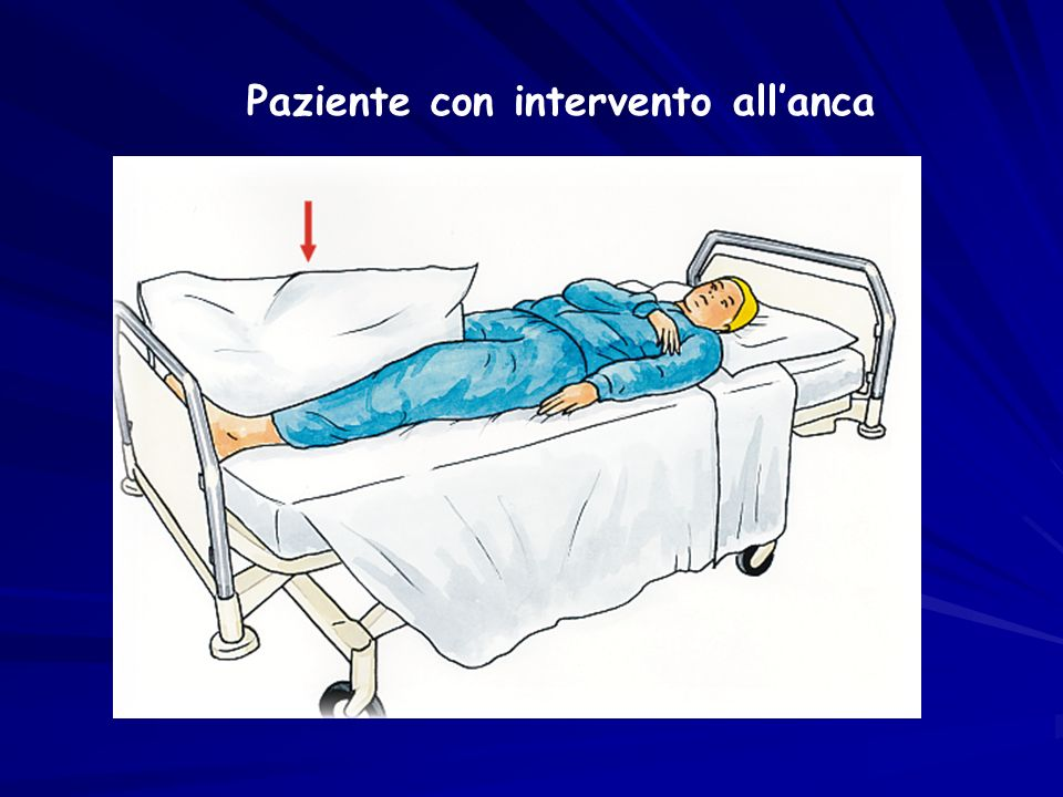 Paziente con intervento all'anca
