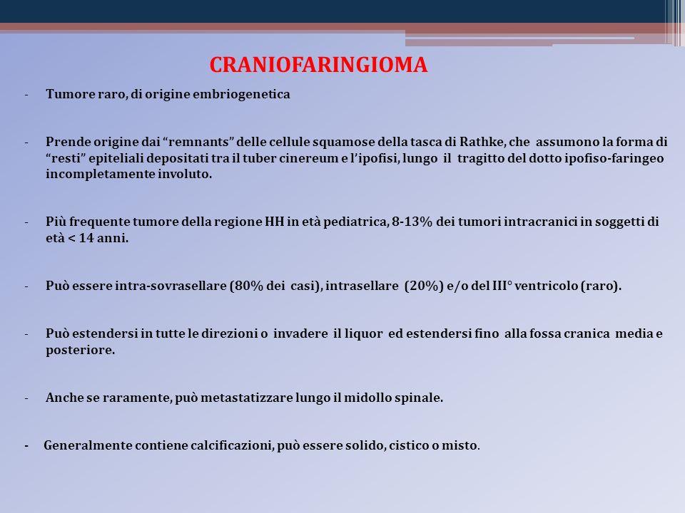 CRANIOFARINGIOMA Tumore raro, di origine embriogenetica