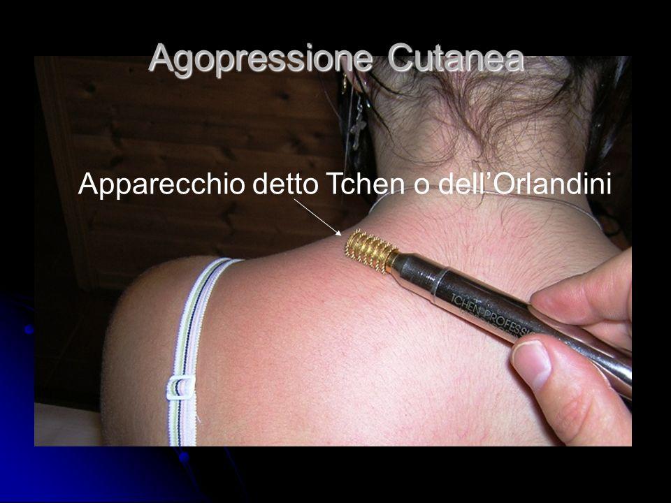 Agopressione Cutanea Apparecchio detto Tchen o dell'Orlandini