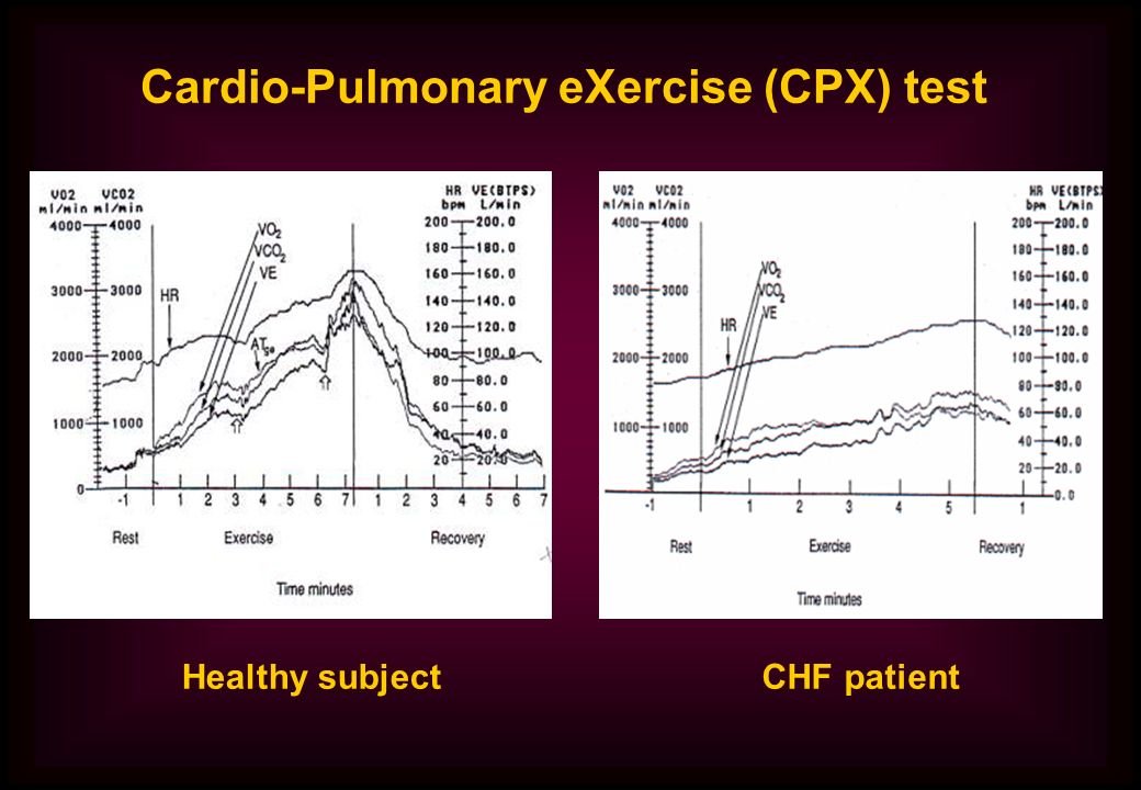 Cardio-Pulmonary eXercise (CPX) test