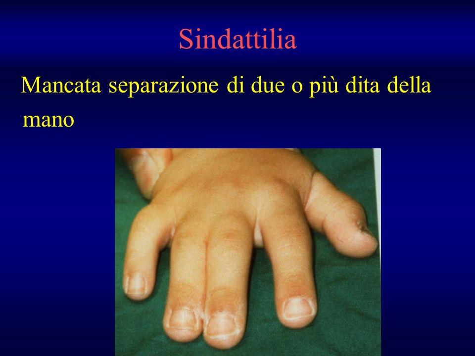 Mancata separazione di due o più dita della mano