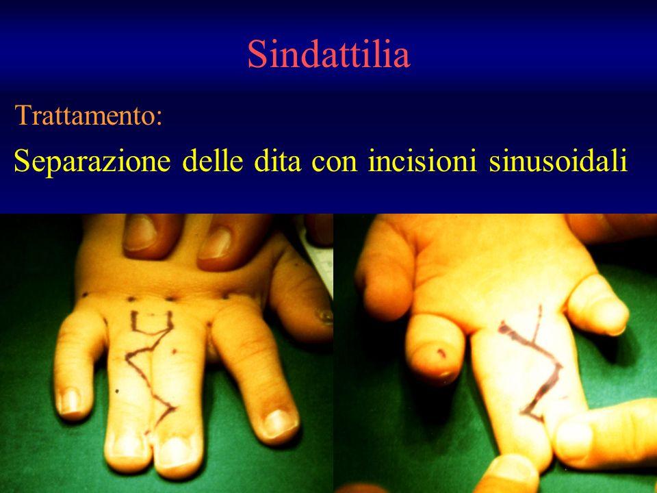 Trattamento: Separazione delle dita con incisioni sinusoidali