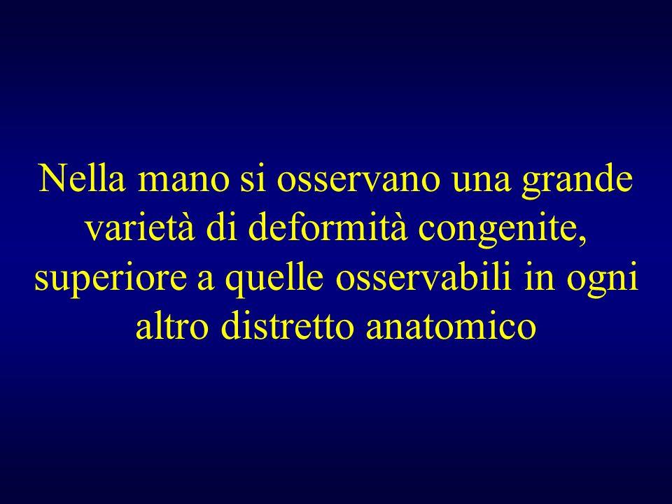 Nella mano si osservano una grande varietà di deformità congenite, superiore a quelle osservabili in ogni altro distretto anatomico