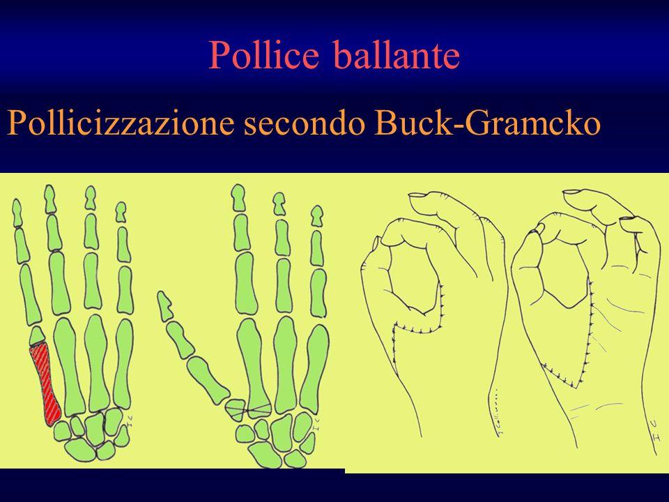 Pollicizzazione secondo Buck-Gramcko