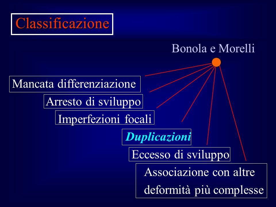 Classificazione Bonola e Morelli Mancata differenziazione