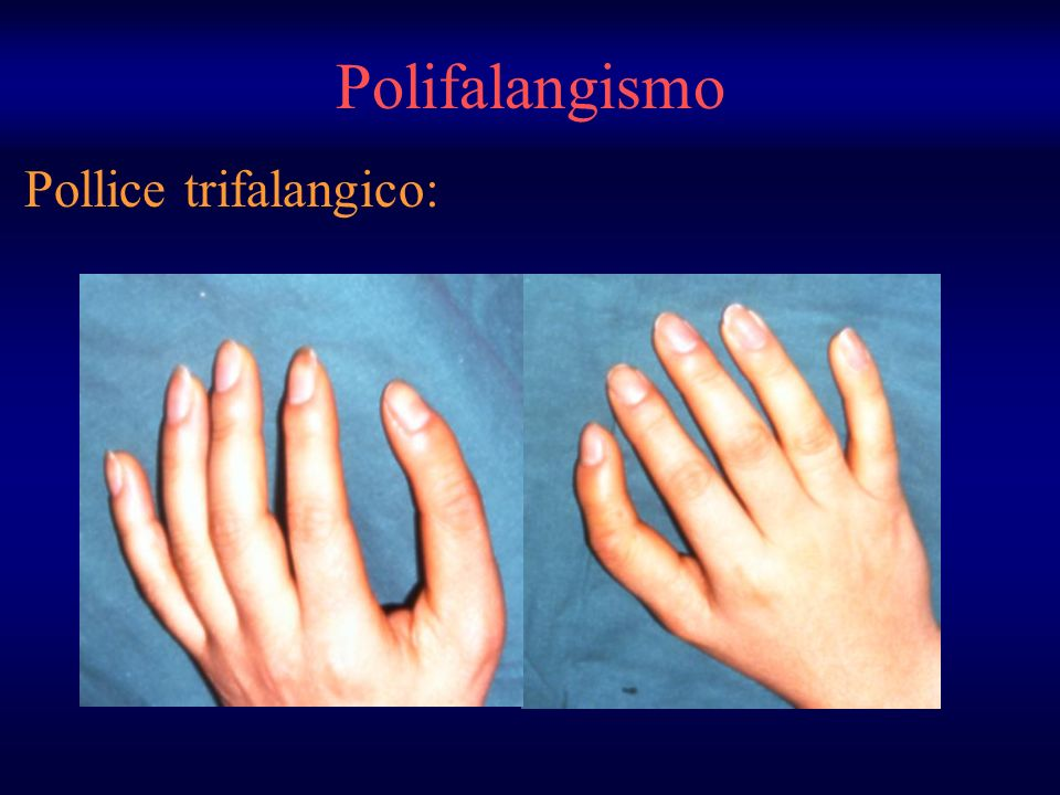 Pollice trifalangico: