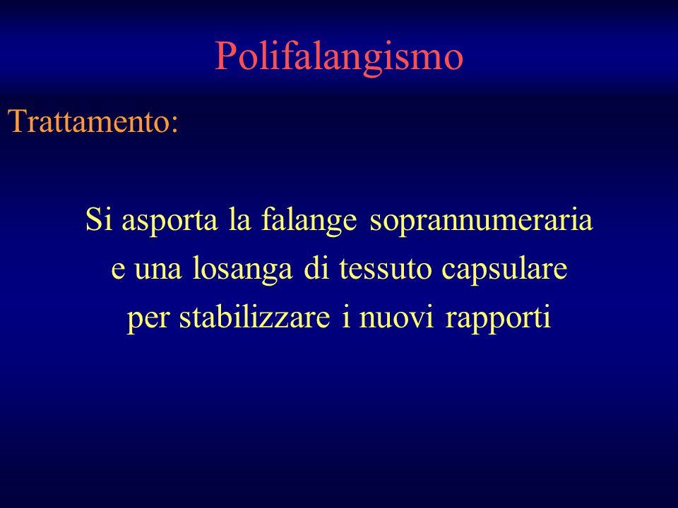 Polifalangismo Trattamento: Si asporta la falange soprannumeraria