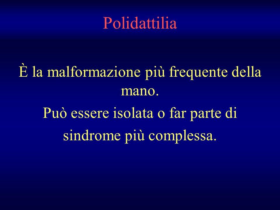 Polidattilia È la malformazione più frequente della mano.