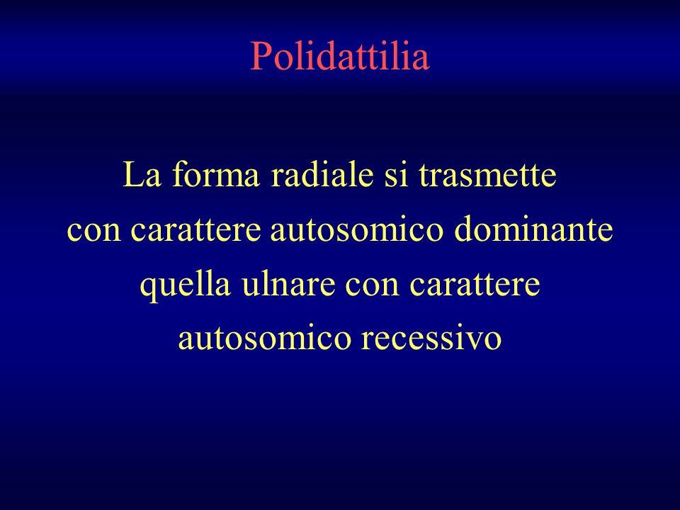 Polidattilia La forma radiale si trasmette