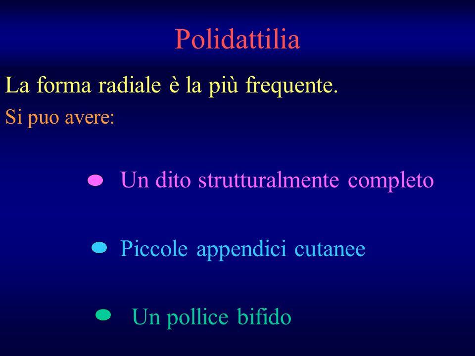 Polidattilia La forma radiale è la più frequente. Si puo avere: