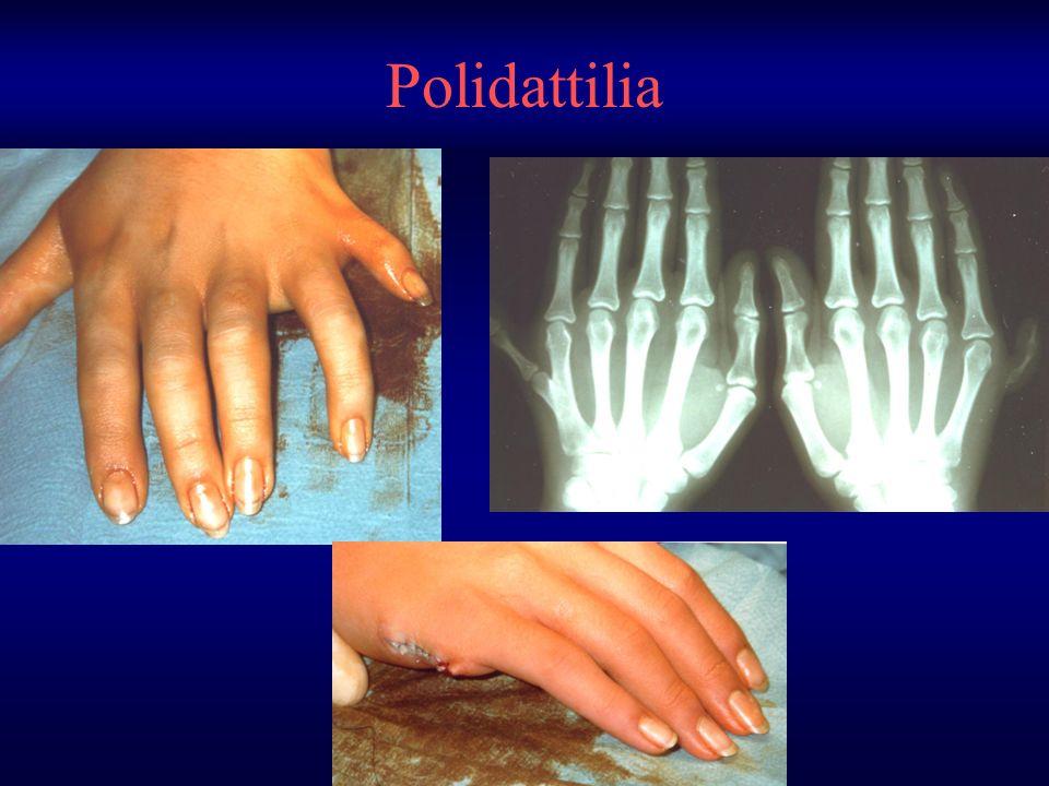 Polidattilia