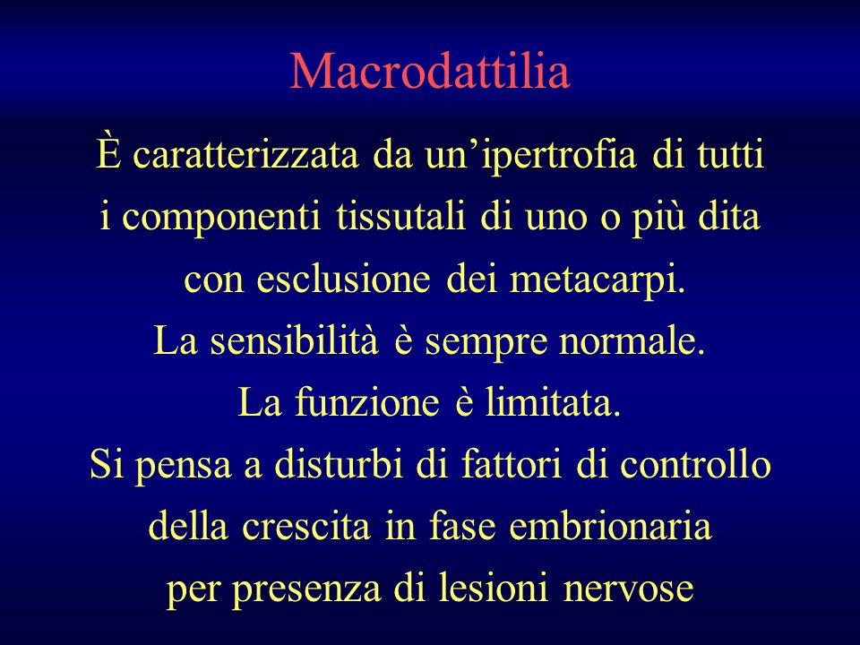 Macrodattilia È caratterizzata da un'ipertrofia di tutti