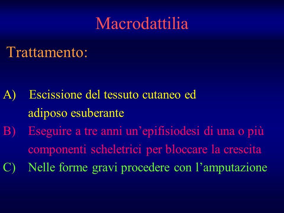 Macrodattilia Trattamento: A) Escissione del tessuto cutaneo ed