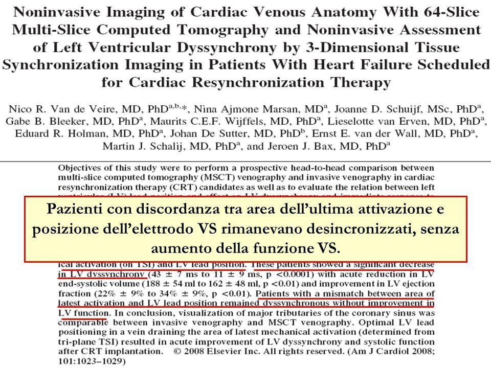 Pazienti con discordanza tra area dell'ultima attivazione e posizione dell'elettrodo VS rimanevano desincronizzati, senza aumento della funzione VS.