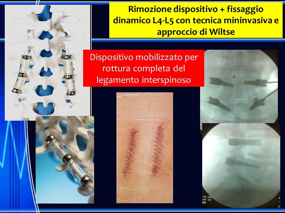 Rimozione dispositivo + fissaggio dinamico L4-L5 con tecnica mininvasiva e approccio di Wiltse