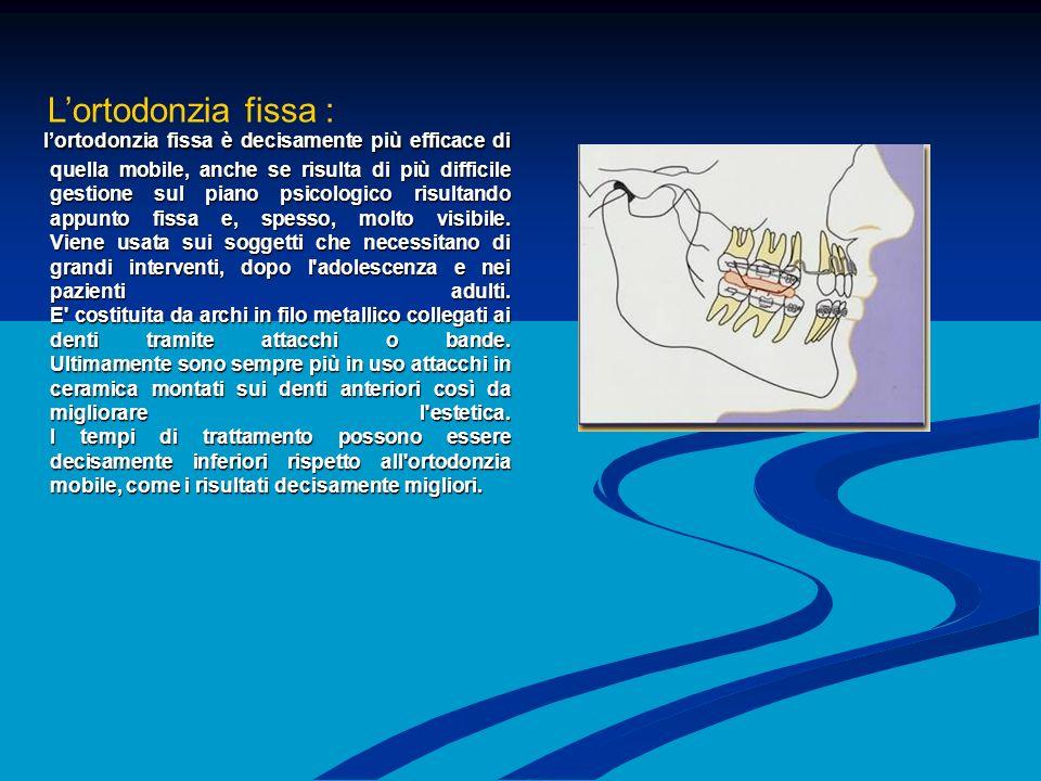 L'ortodonzia fissa :