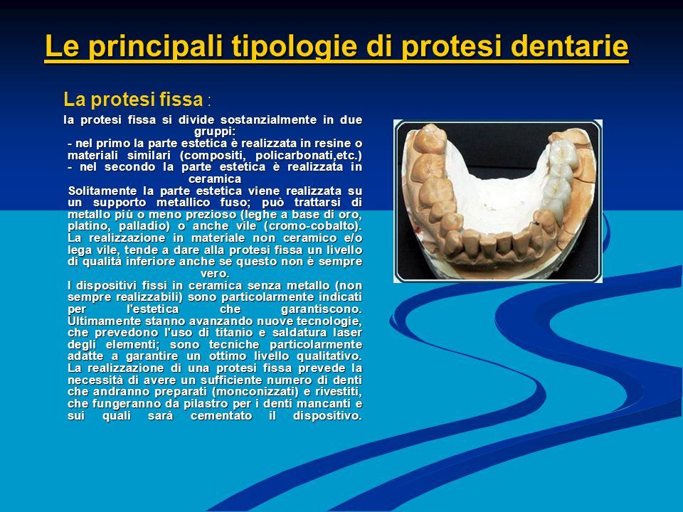 Le principali tipologie di protesi dentarie