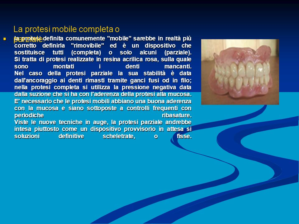 La protesi mobile completa o parziale: