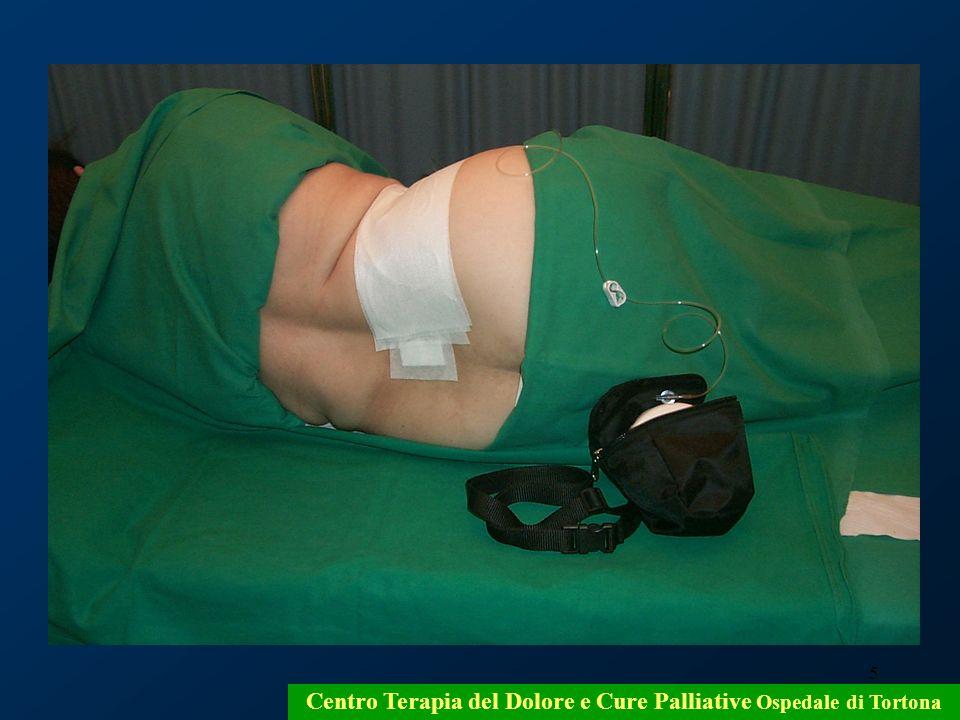 Centro Terapia del Dolore e Cure Palliative Ospedale di Tortona
