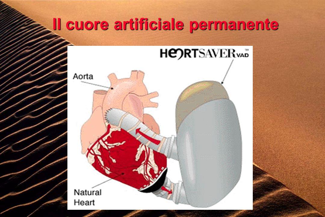 Il cuore artificiale permanente