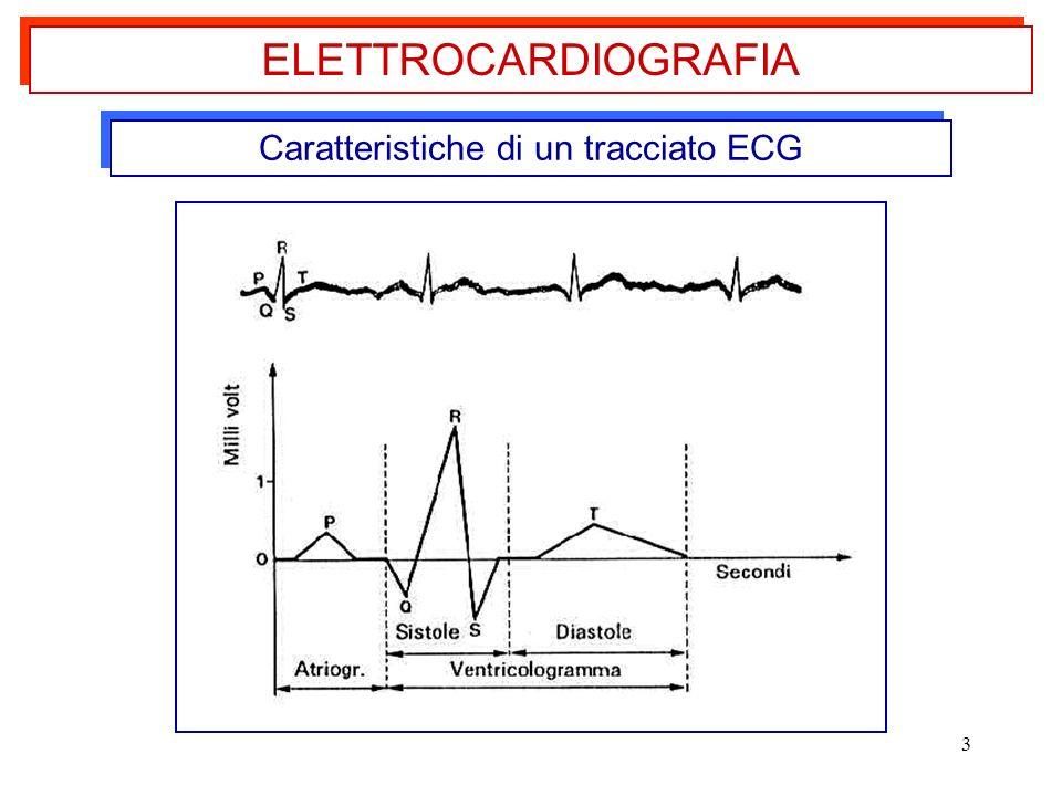 Caratteristiche di un tracciato ECG