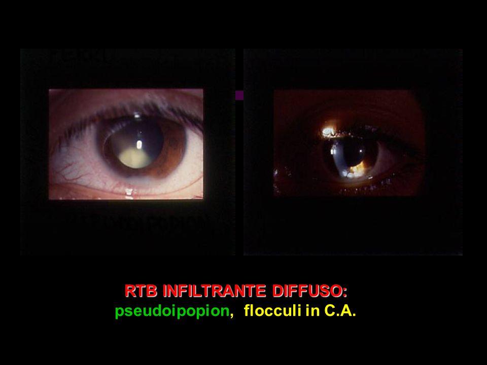 RTB INFILTRANTE DIFFUSO: pseudoipopion, flocculi in C.A.