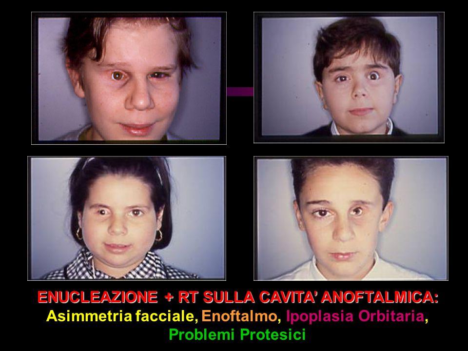 ENUCLEAZIONE + RT SULLA CAVITA' ANOFTALMICA: