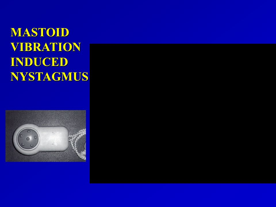 MASTOID VIBRATION INDUCED NYSTAGMUS