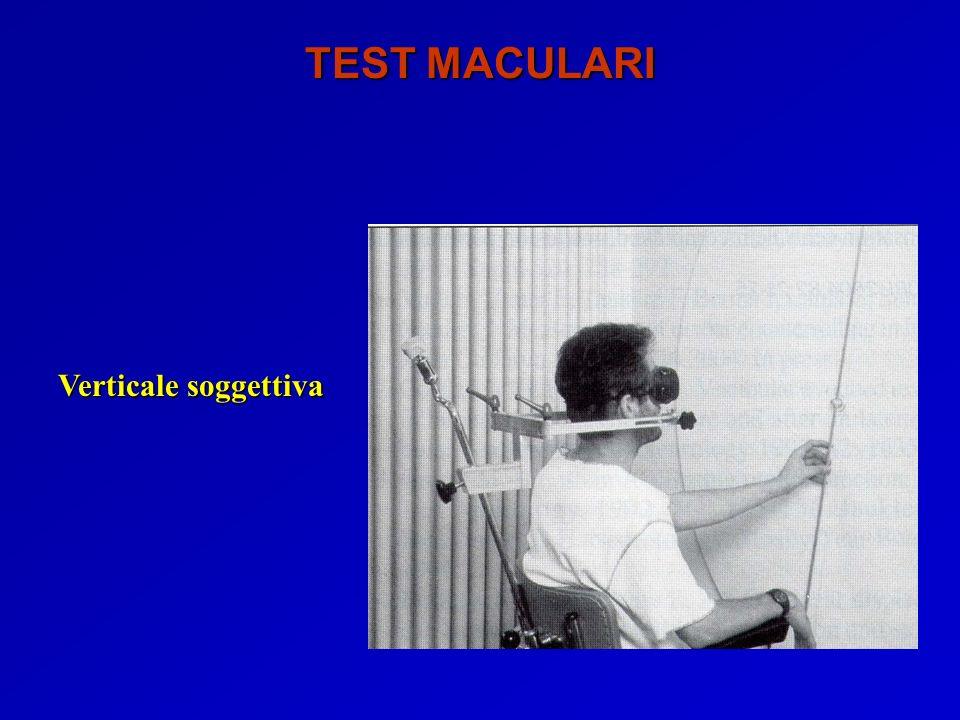 TEST MACULARI Verticale soggettiva