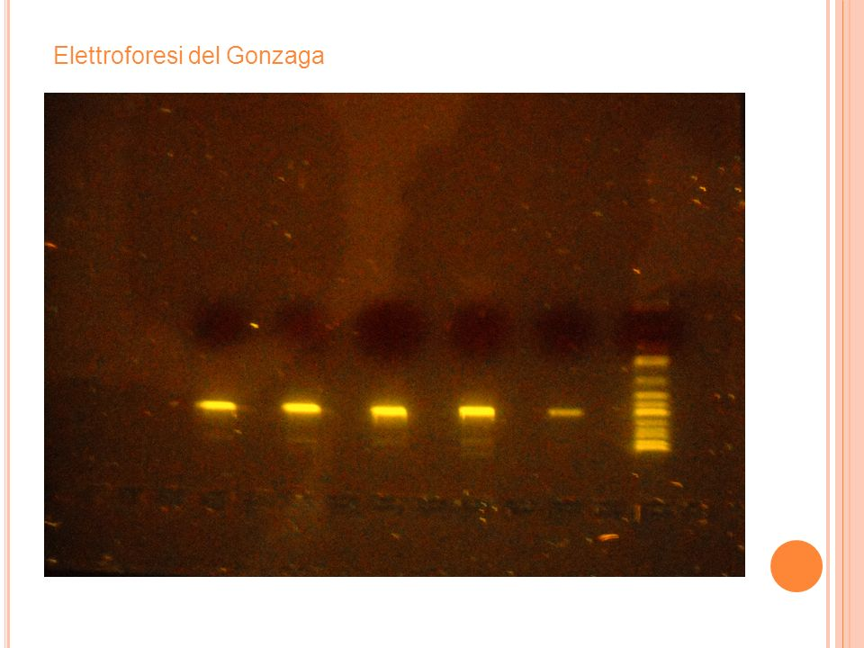 Elettroforesi del Gonzaga