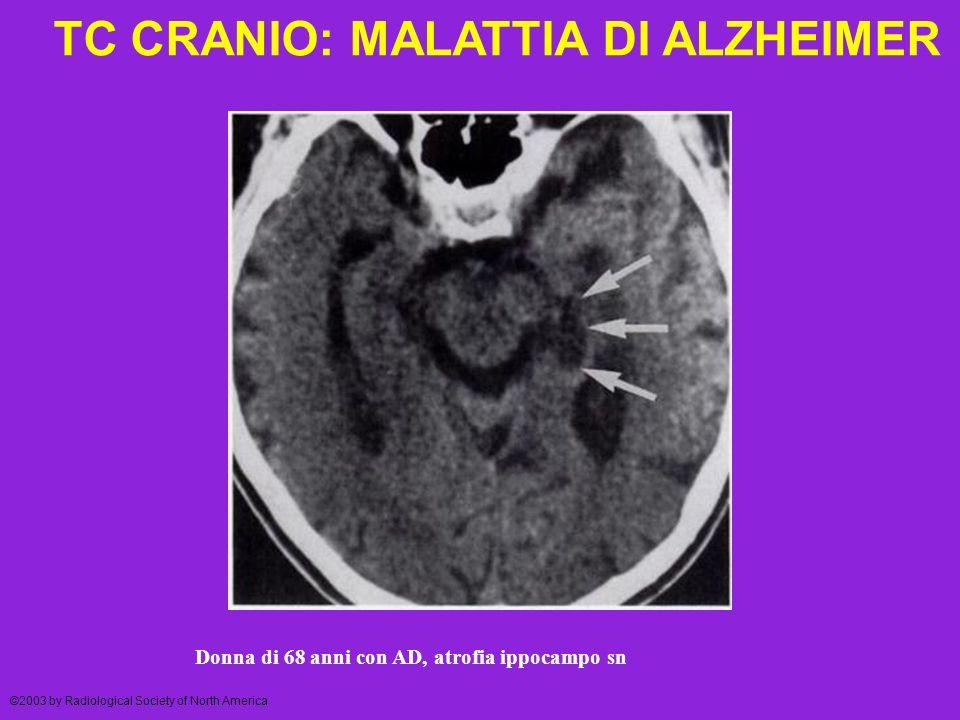 TC CRANIO: MALATTIA DI ALZHEIMER