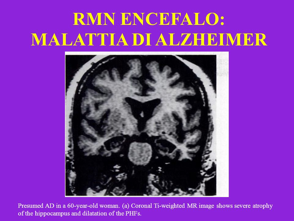 RMN ENCEFALO: MALATTIA DI ALZHEIMER