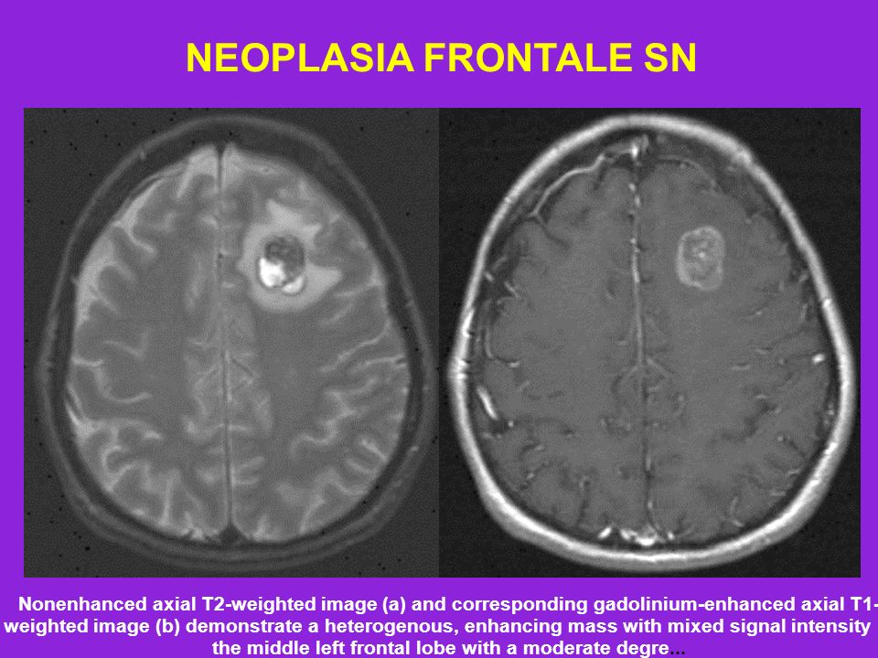 NEOPLASIA FRONTALE SN