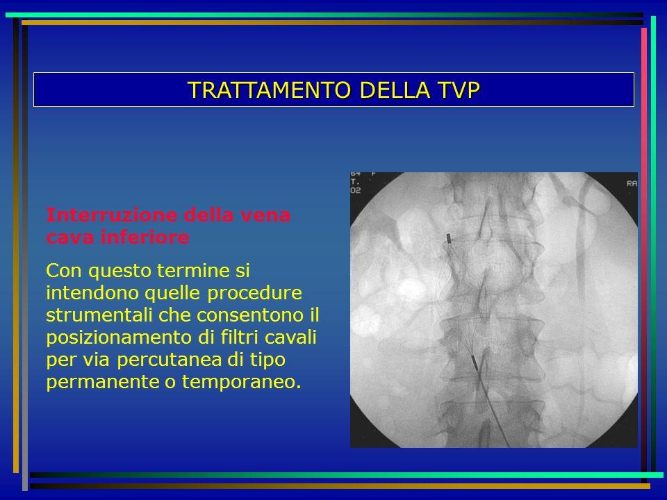 TRATTAMENTO DELLA TVP Interruzione della vena cava inferiore