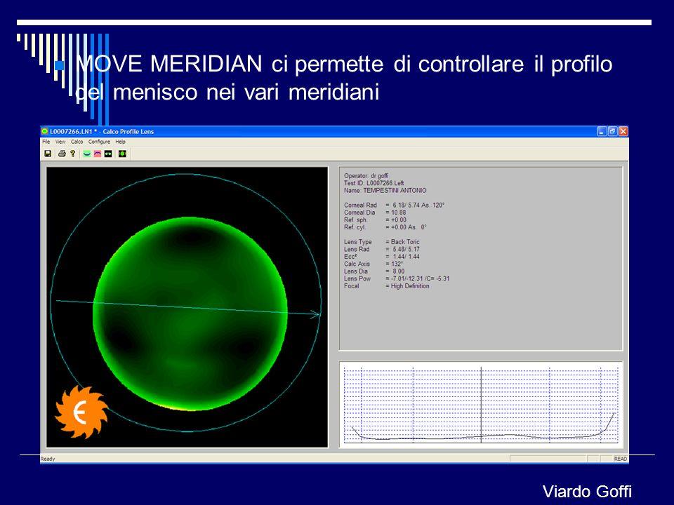 MOVE MERIDIAN ci permette di controllare il profilo del menisco nei vari meridiani