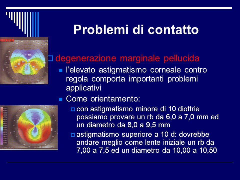 Problemi di contatto degenerazione marginale pellucida