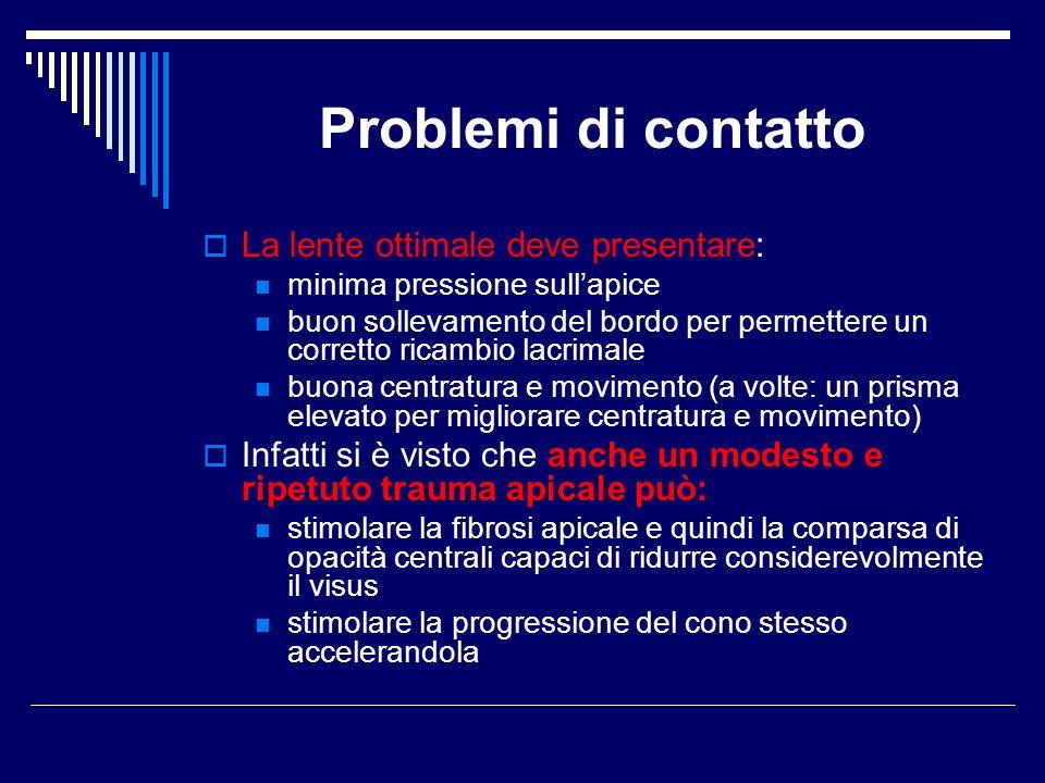 Problemi di contatto La lente ottimale deve presentare:
