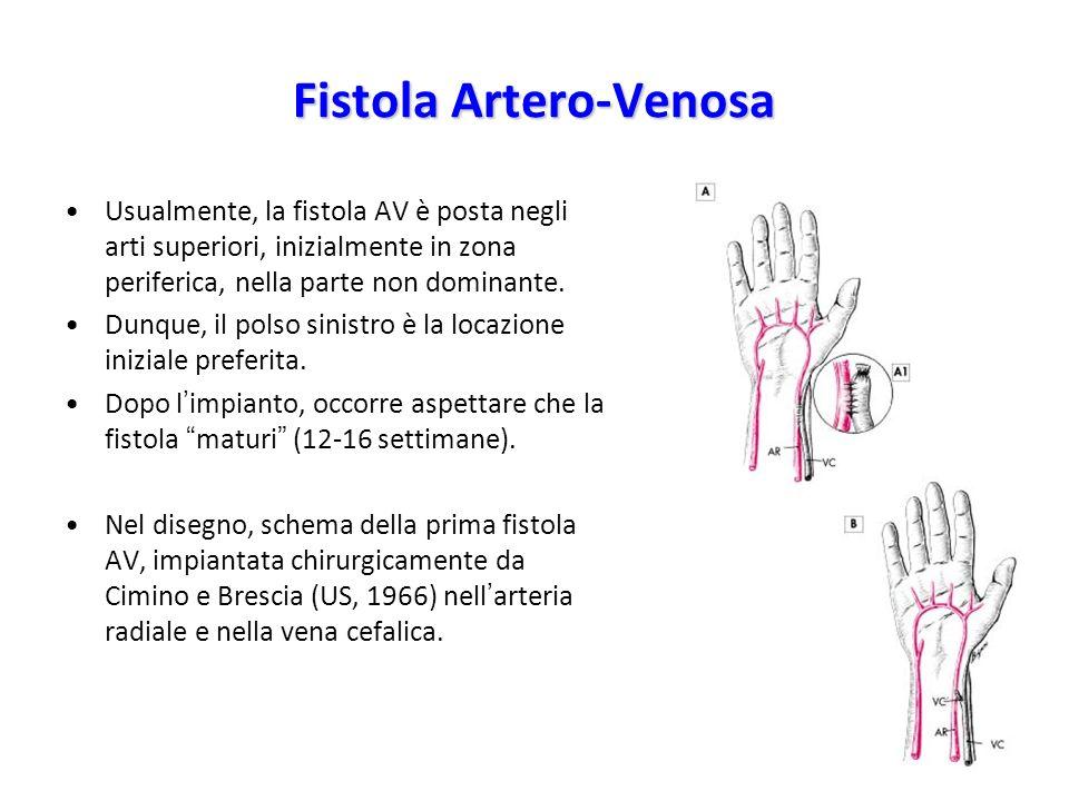 Fistola Artero-Venosa