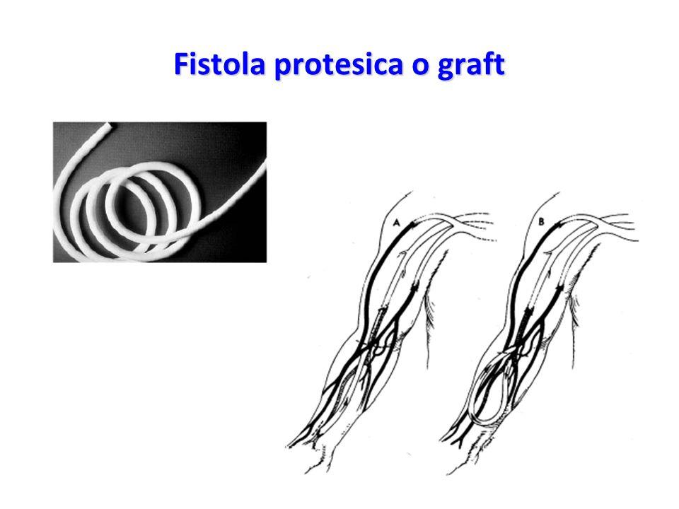 Fistola protesica o graft