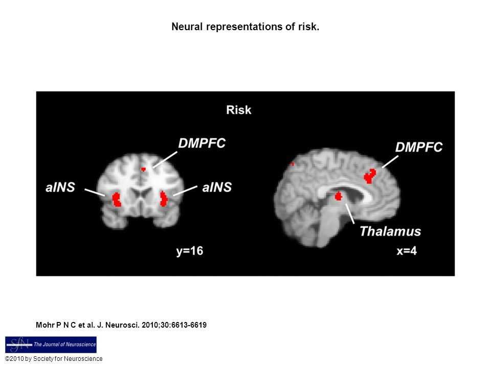 Neural representations of risk.