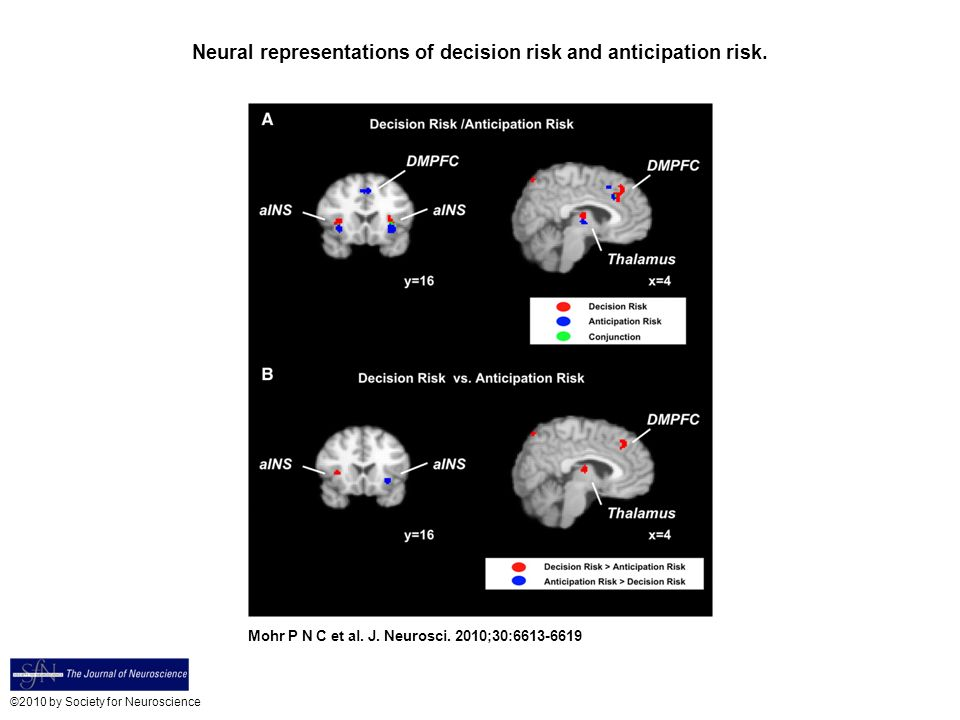 Neural representations of decision risk and anticipation risk.