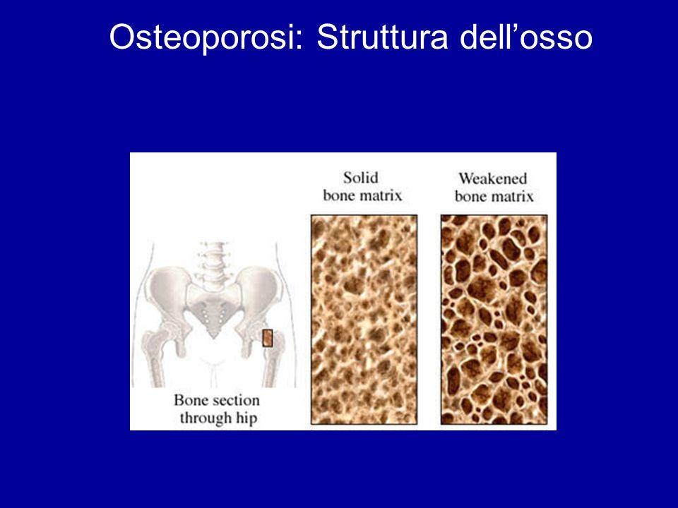 Osteoporosi: Struttura dell'osso