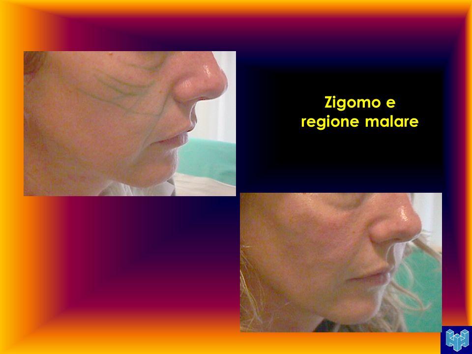 Zigomo e regione malare